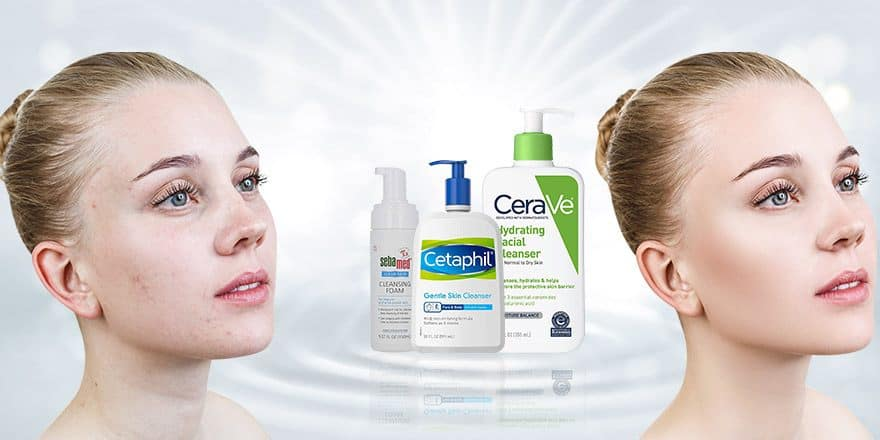 Best Face Washes and Cleansers for Whiteheads